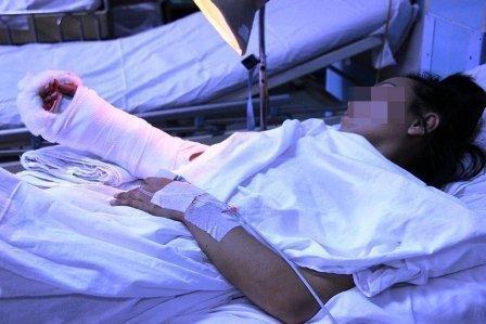 Chị Nguyễn Thị Ngọc Thúy, nạn nhân của vụ chặt tay, cướp SH - (Ảnh: VietNamNet)